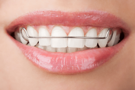 how long should I wear my retainer in westchester county ny