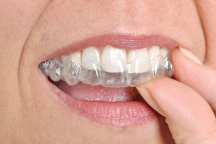 cost of invisalign in cortlandt manor ny