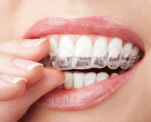 cost of invisalign in peekskill ny