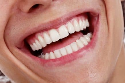 teeth-whitening-yorktown-heights