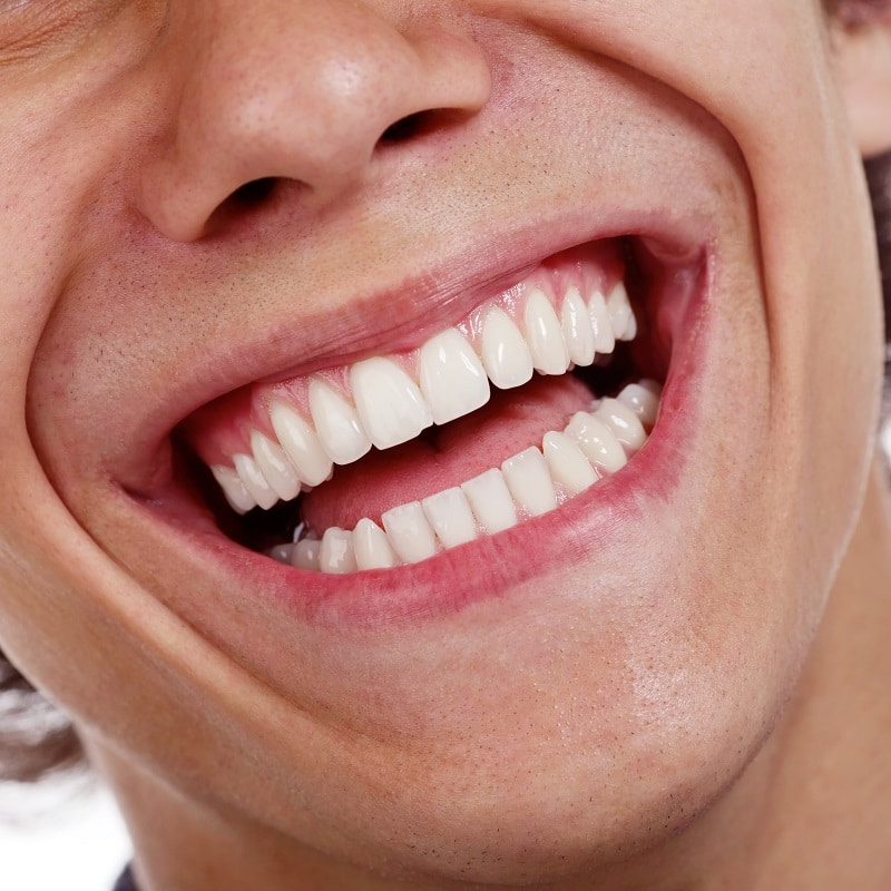 Create a Dazzling Smile with Teeth Whitening