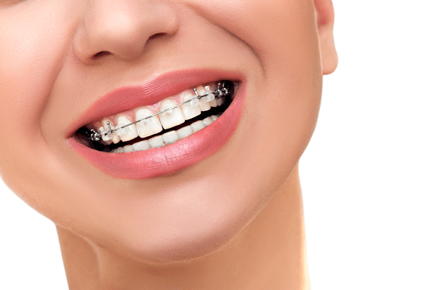 Do You Know the Parts of Your Braces?