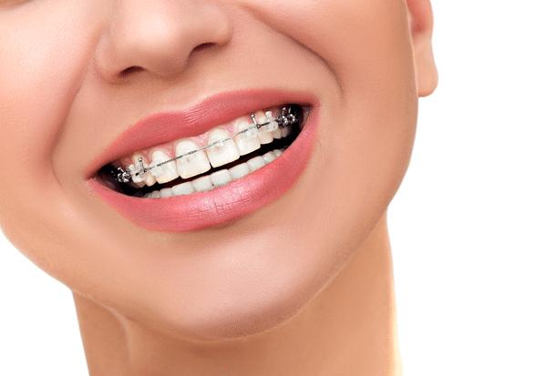 braces-montrose-ny