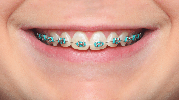 Affordable Braces near Jefferson Valley, NY