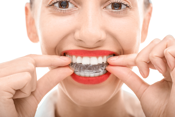 How Do I Keep My Invisalign Clean?