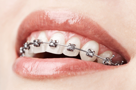 braces near yorktown heights ny
