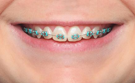 smile braces myths