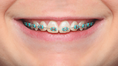 smile braces myths