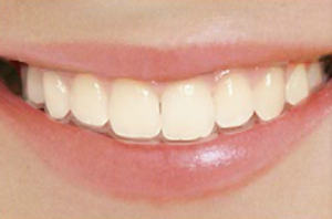 invisalign-cortland-manor-orthodontist