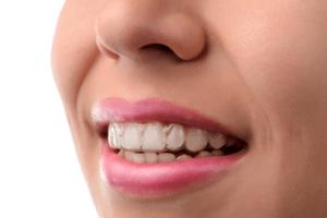 invisalign vs smile direct club