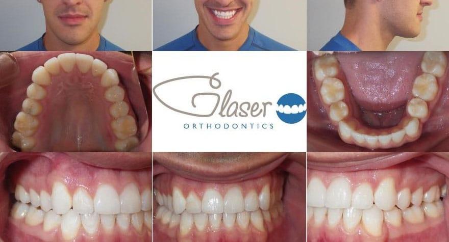 braces ossining ny