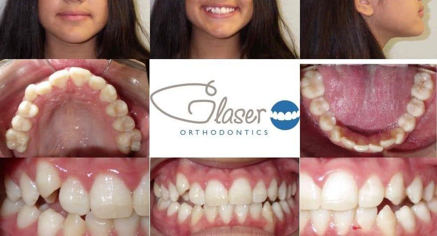 orthodontist montrose ny