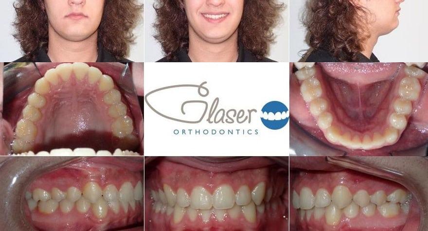 orthodontist ossining ny