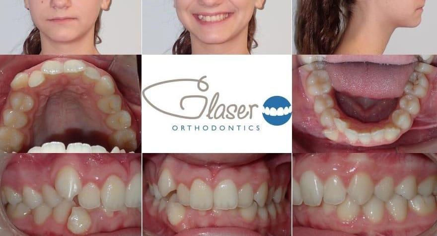 orthodontist peekskill ny