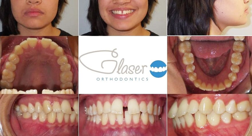 orthodontist westchester county ny