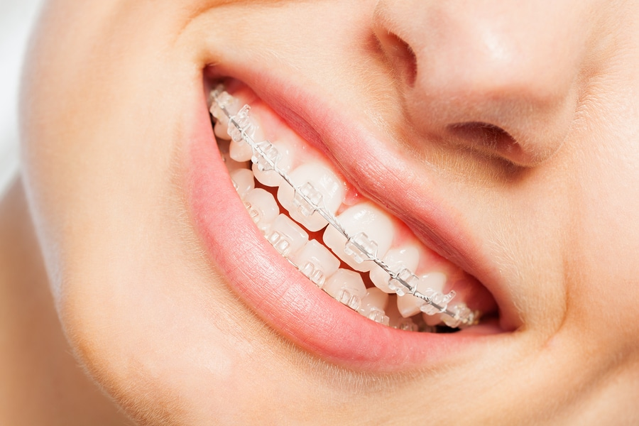Invisible Braces | What Are My Options?