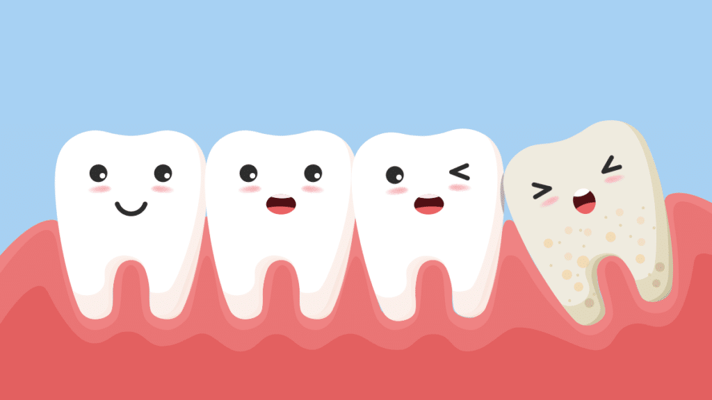 Why Do Teeth Shift with Age