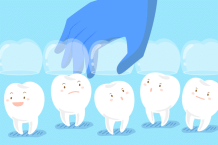 Why Do Teeth Shift