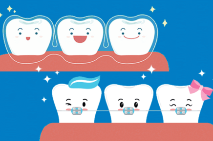 What's the Difference Between Invisalign and Braces